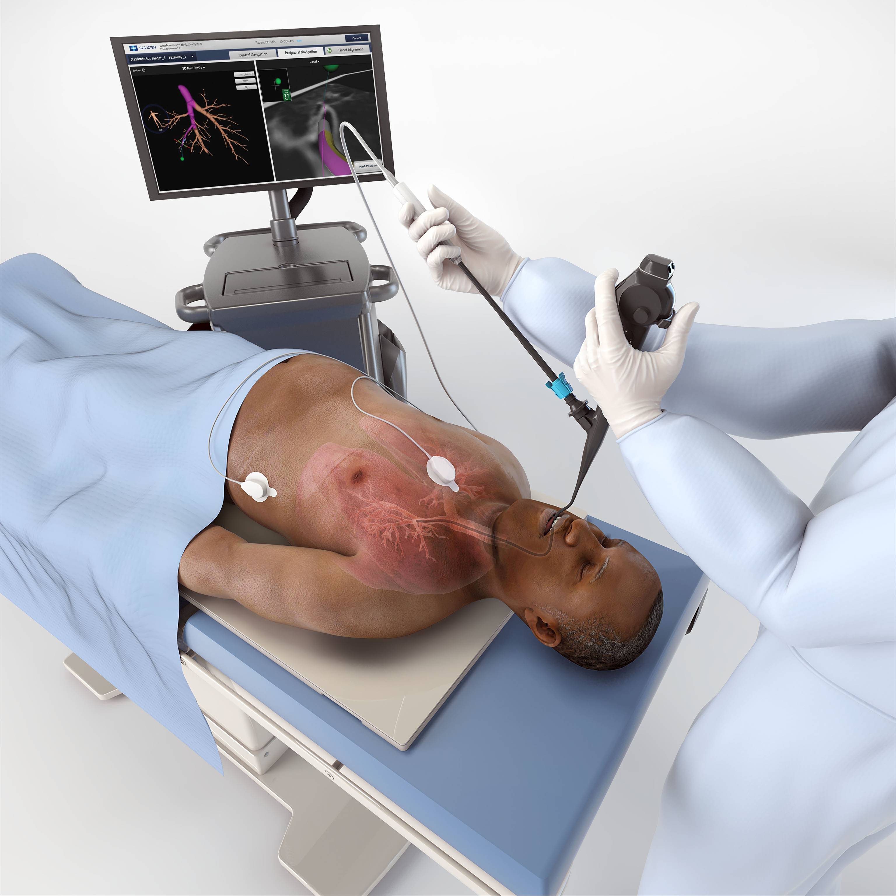 Real-World Data on Medtronic's Lung Cancer Device Is