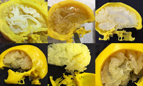 3-D printed brain model Stratasys Direct