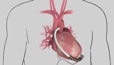 medtronic to buy heartware for 1 1 billion mddi online