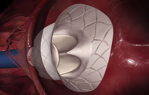 Tendyne Bioprosthetic Mitral Valve