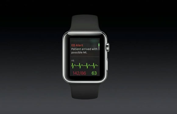 Apple Watch with AirStrip One