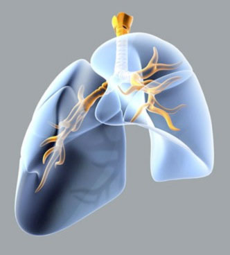 Denervation treatment is set for clinical trials for COPD. (Courtesy Holaira Inc.)