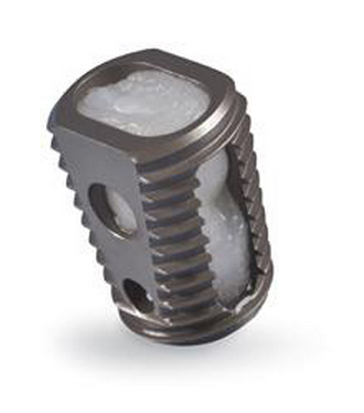 Yale Study of Medtronic's Infuse Spinal Fusion Product