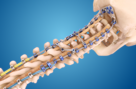 Will Medtronic's New Spine System Be 'Infinitely' Better for Workflow?