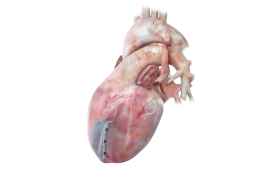 BioVentrix Has Developed a Unique Way to Improve Heart Functionality