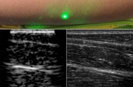 Laser System Can Remotely Capture Images Inside Your Body