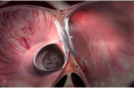 W.L. Gore's Cardioform ASD Occluder Obtains CE Mark