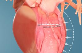 Tales from TCT 2019: Ancora's Heart Felt Data