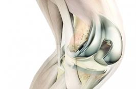 3 Trends That Are Disrupting the Total Knee Replacement Market in 2020