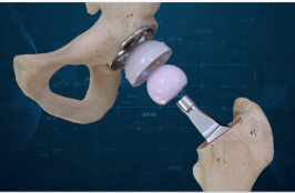 New Hip Replacement Procedure Launches