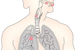 Test Shows How Lung Cancer Patients Respond to Therapy