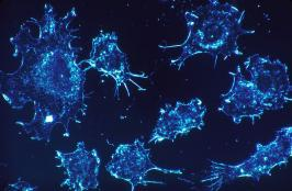 Using AI to Get a Better Understanding of Cancer Cells