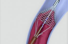 New DVT Device Designed to Tackle Stubborn 'Wall-to-Wall' Clot