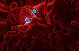 Researchers Discover Interesting Imaging Features for Coronavirus