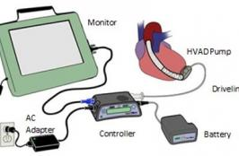 Medtronic Recalls HeartWare VADs Again Due to an Electrical Problem