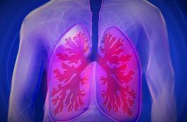 Nuvaira Raises $79M for COPD Treatment Device