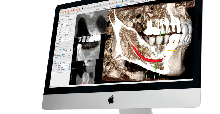 new dental tech spin out to offer Invivo 3D dental tech software