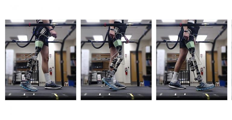 Machine Learning and VR Are Driving Prosthetics Research