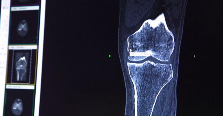 Designing Joint Implants That Enhance Patient Satisfaction