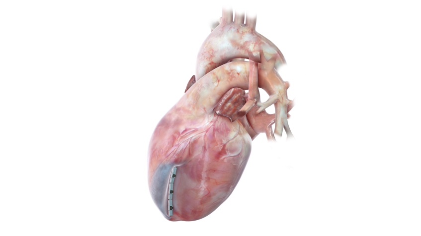 Open Heart Surgery stock image. Image of convalescence ... |Heart Scar Tissue