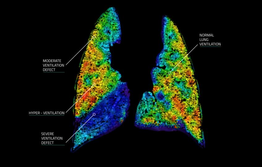 An Australian Startups Unique Approach To Imaging Lung Function