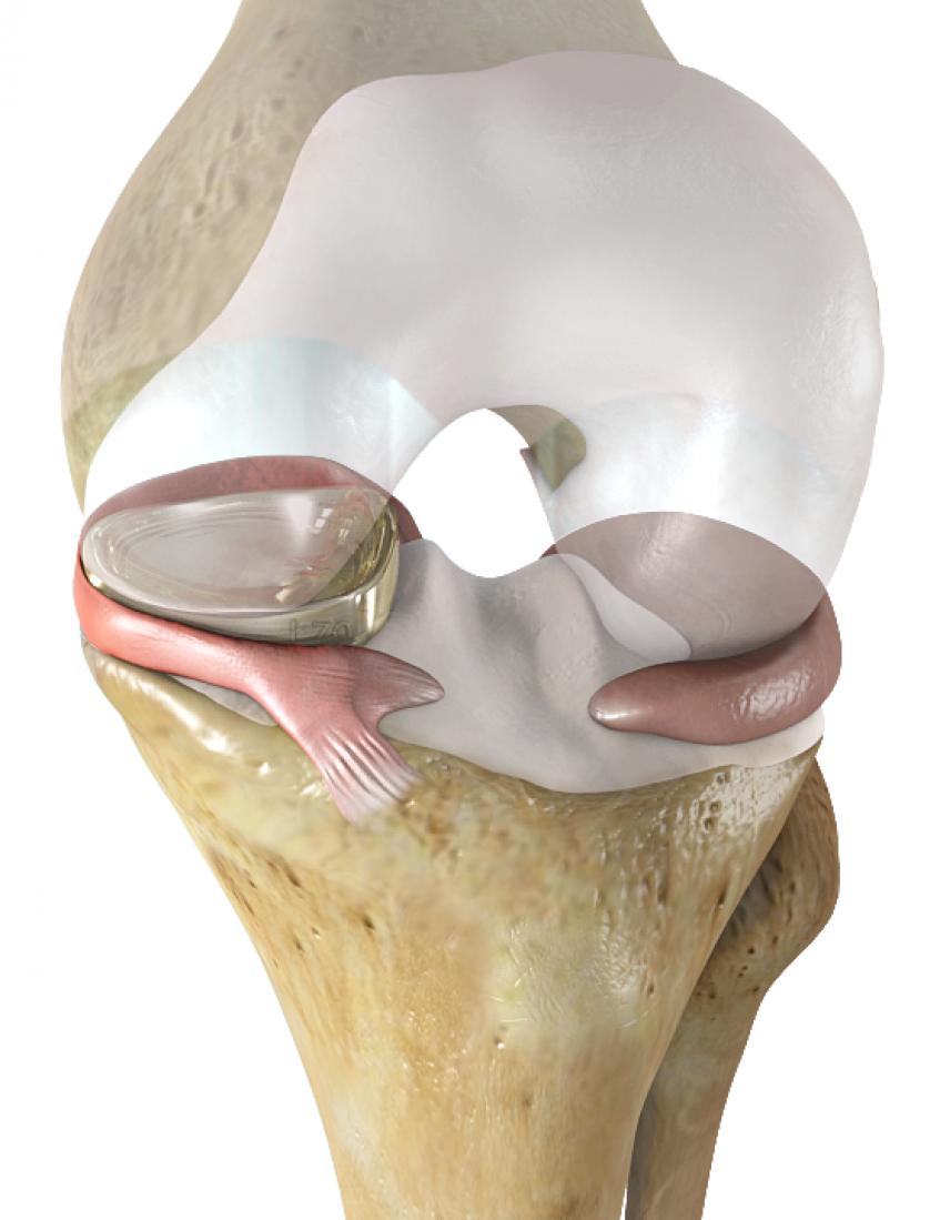 First artificial meniscus wins 'breakthrough device' designation