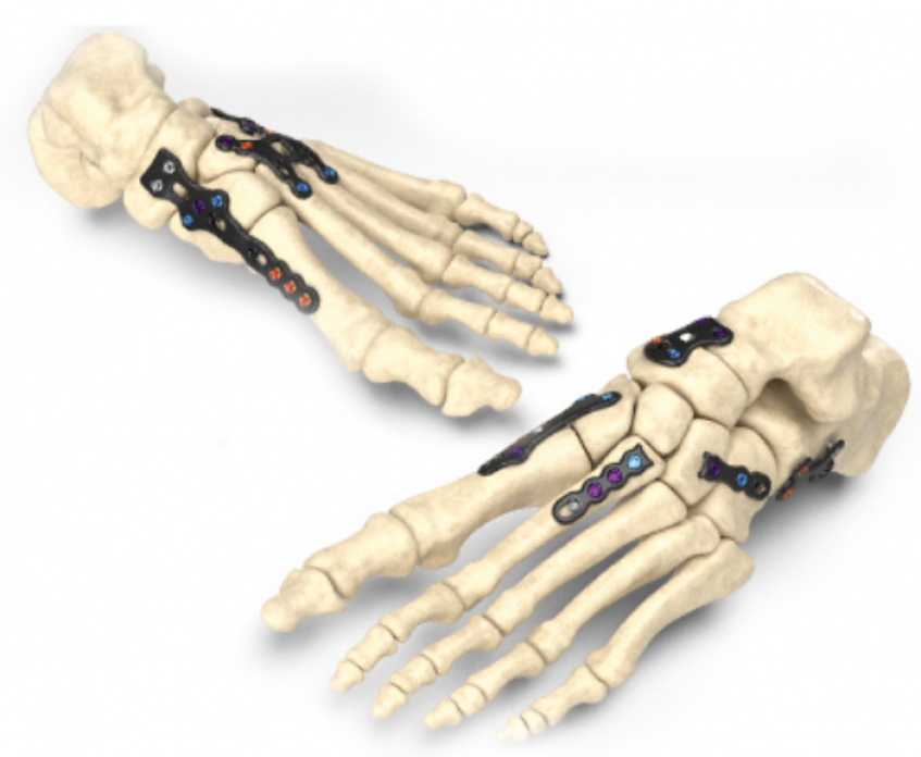 Image of the Stratum Foot Plating System courtesy of Zimmer Biomet