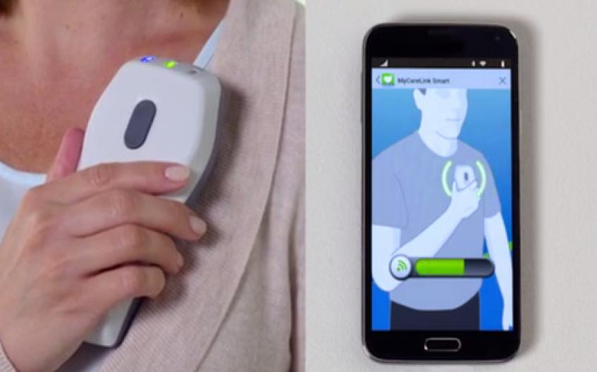 Medtronic Gives App Capability to Remotely Monitor Pacemaker