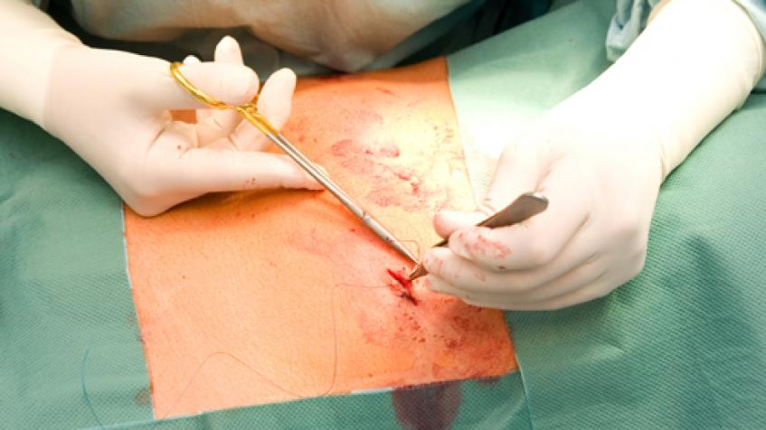 Sutures Startup Seeks to Provide Novel Alternative to Wound Closure
