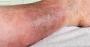 chronic venous insufficiency (CVI)