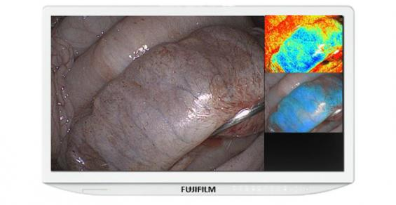 Fujifilm Eyes Better Patient Outcomes with FDA 510(k) Clearance for Endosurgical Image Enhancement Technology