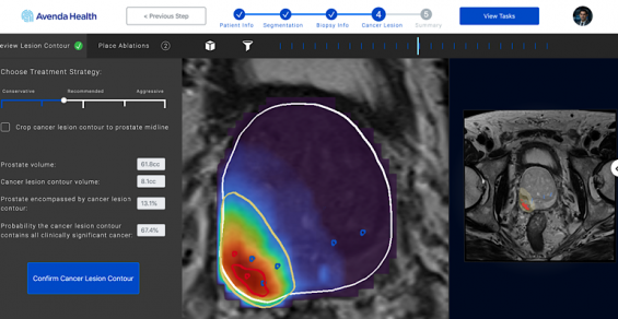 AI-Enabled Prostate Cancer Therapy Wins Breakthrough Designation