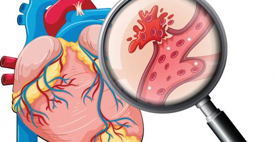 Aidoc Wins Clearance for AI Solution that Flags Incidental Pulmonary Embolism