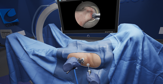 Precision OS Makes 'Breakthrough' in Arthroscopy Education