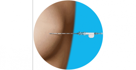 A Breast Cancer Surgery Technology So Easy a 3-Year-Old Can Use It