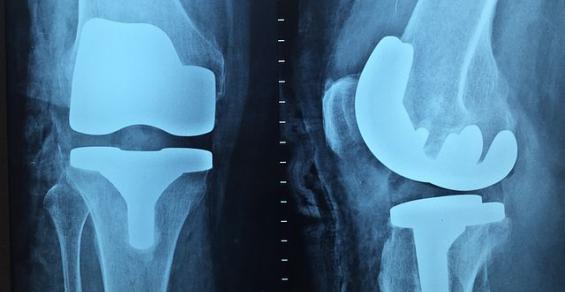 10 Medtech Companies that Helped Define Orthopedics