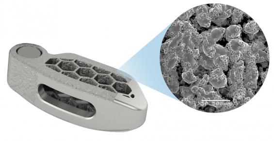 Medtronic Is Taking Spinal Implants to the Next Level with 3D Printing