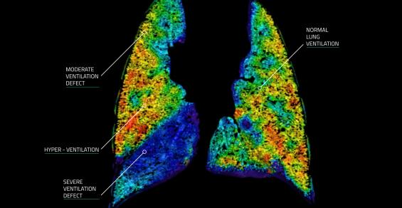 An Australian Startup's Unique Approach to Imaging Lung Function