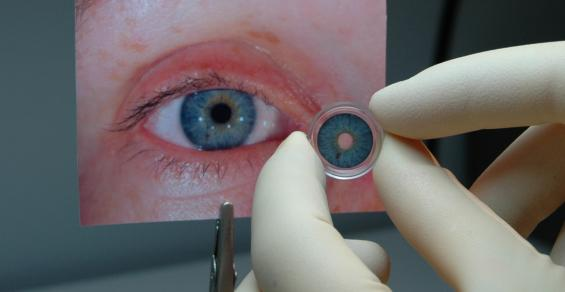 FDA Approves First Artificial Iris