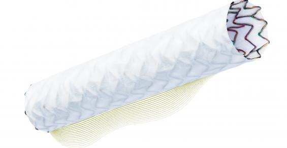 Biotronik Is a Tougher Competitor in Stents with PK Papyrus