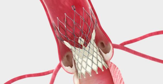 Medtronic Will Study TAVR in Low-Risk Patients with Bicuspid Valves