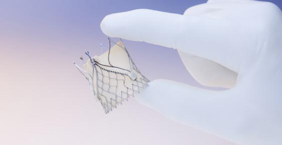 JenaValve Is a Growing Force to be Reckoned with in TAVR