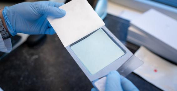 Dural Sealant Patch Made of Bioresorbable Polymers Earns CE Mark