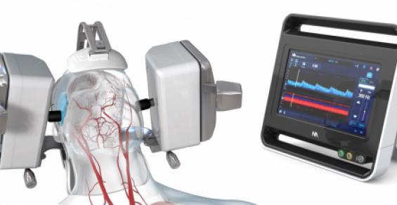 NA Looks to Lead Robotics-Based Ultrasound Revolution