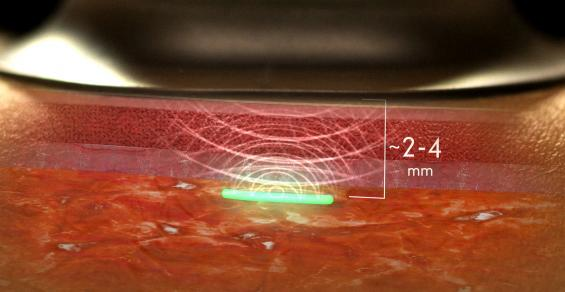 Early-Warning System for Detecting Infections Is Being Studied