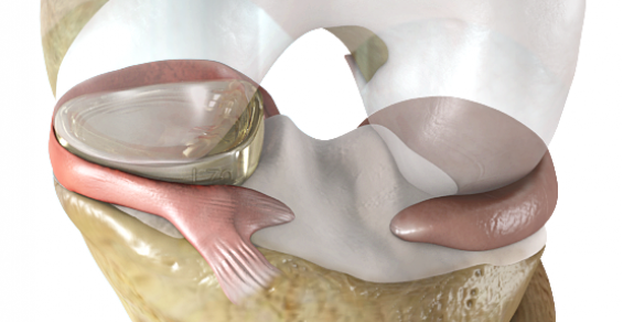 First 'Artificial Meniscus' Wins FDA Breakthrough Device Designation