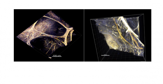 Expediting 3D Analysis of Normal and Diseased Tissues