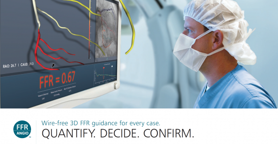 Can 3D Modeling Replace a Guidewire-Based Cardiac Procedure?
