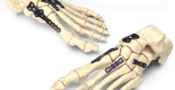 Next-Generation Foot Plating System Aims to Ease Use and Save Time in the Operating Room