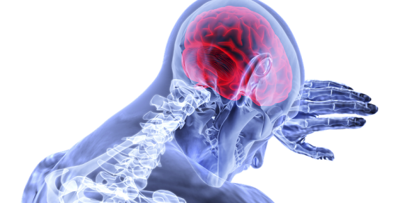 Concussion Detection Still A Hot Market for Medtech